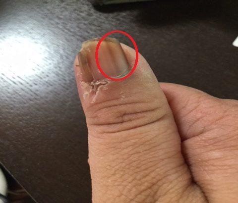 【爪の黒い線に注意】メラノーマ(悪性黒色腫)に気をつけて